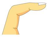 ばね指と漢方.jpg